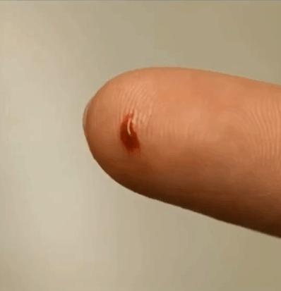 血液放大了1500倍之后,景象让人想象不到