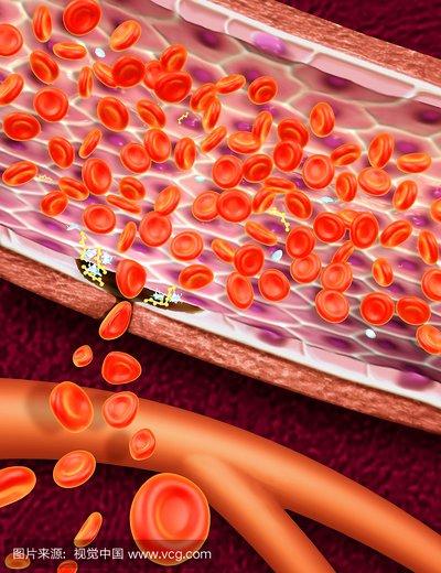 血小板减少人体会变成什么样?如何科学护理?