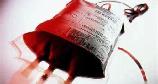 血浆的主要成分及常见类型